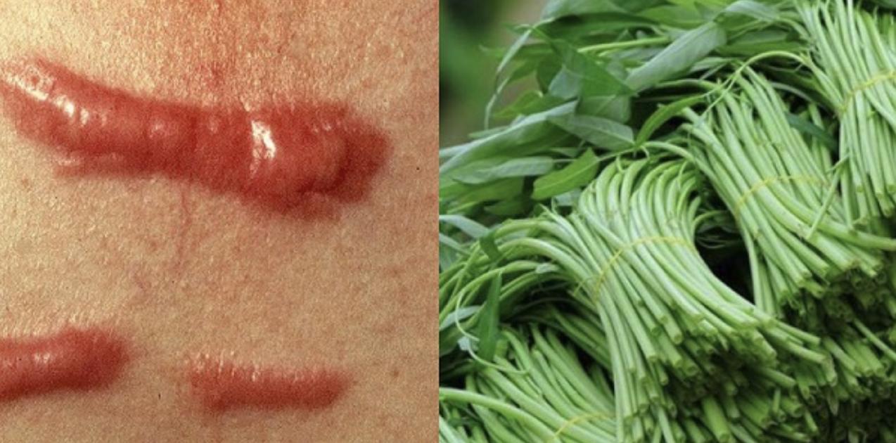 Những thói quen ăn rau muống không đúng, dễ rước bệnh vào thân