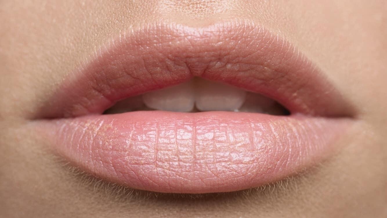 Nhìn tình trạng đôi môi để biết được sức khỏe bản thân
